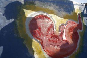 Tabletka zdvihla v Spojených štátoch počet potratov